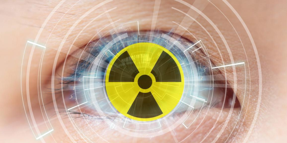 Radiation Cataractogenesis: The Progression of Our Understanding and Its Clinical Consequences